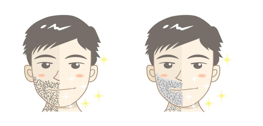 メンズ脱毛の回数と目安