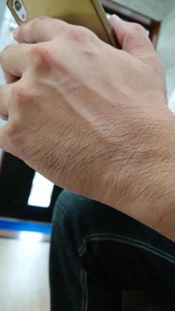 メンズの腕脱毛?気になる腕毛の施術回数・効果・かかる費用とは?