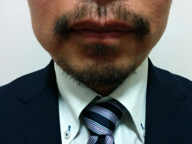 髭が濃くなる原因とは