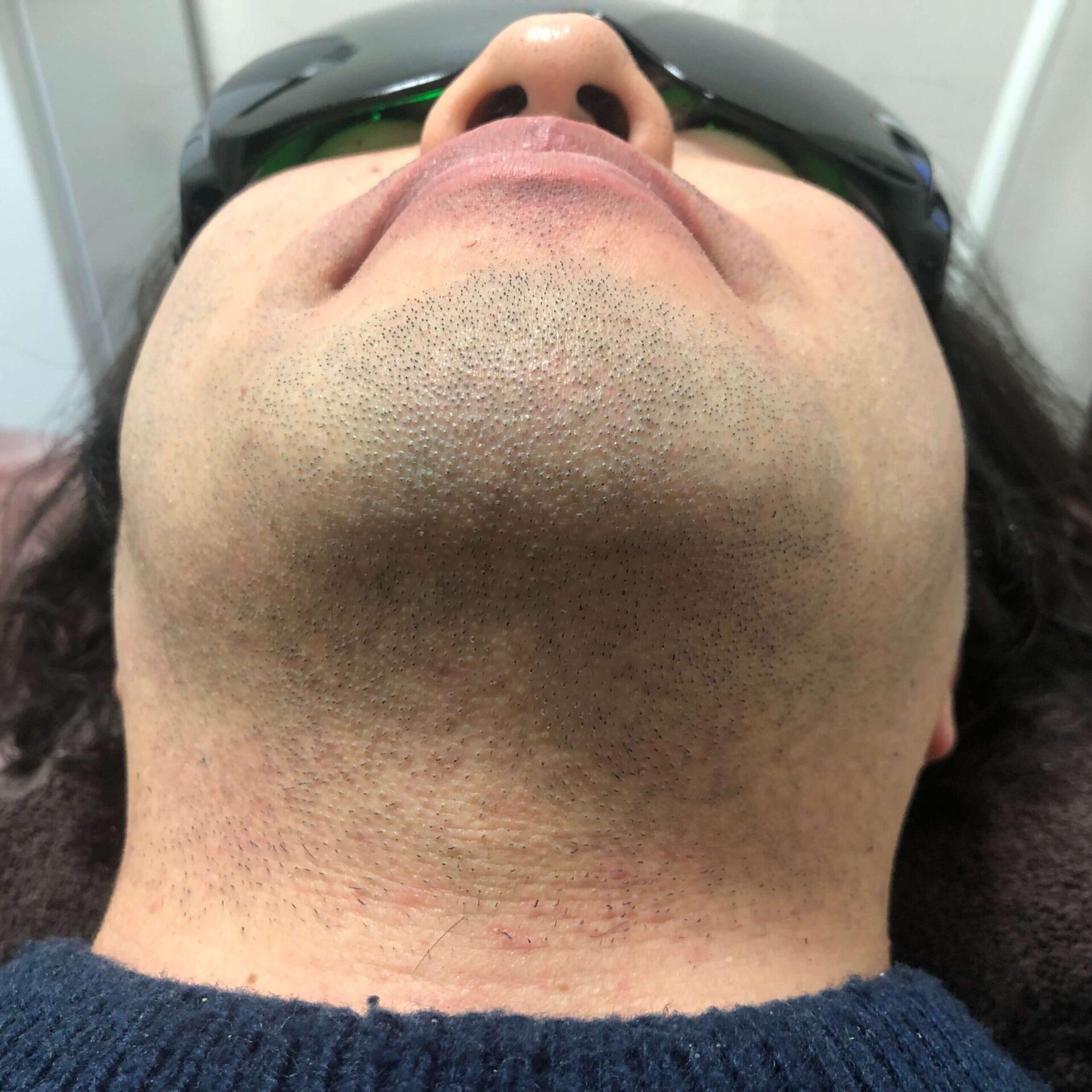 男性の『ヒゲ脱毛』